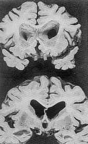 atrophie cérébrale
