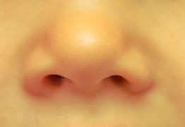 Comprendre et soigner naturellement le nez bouché !