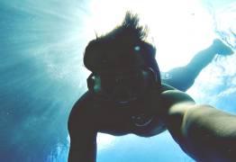 Les otites externes du plongeur