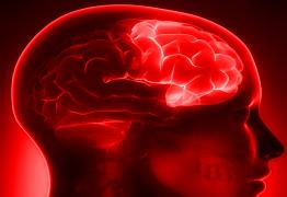 Acouphènes et émotions : Ce n'est plus « dans votre tête » mais bel et bien dans votre cerveau !